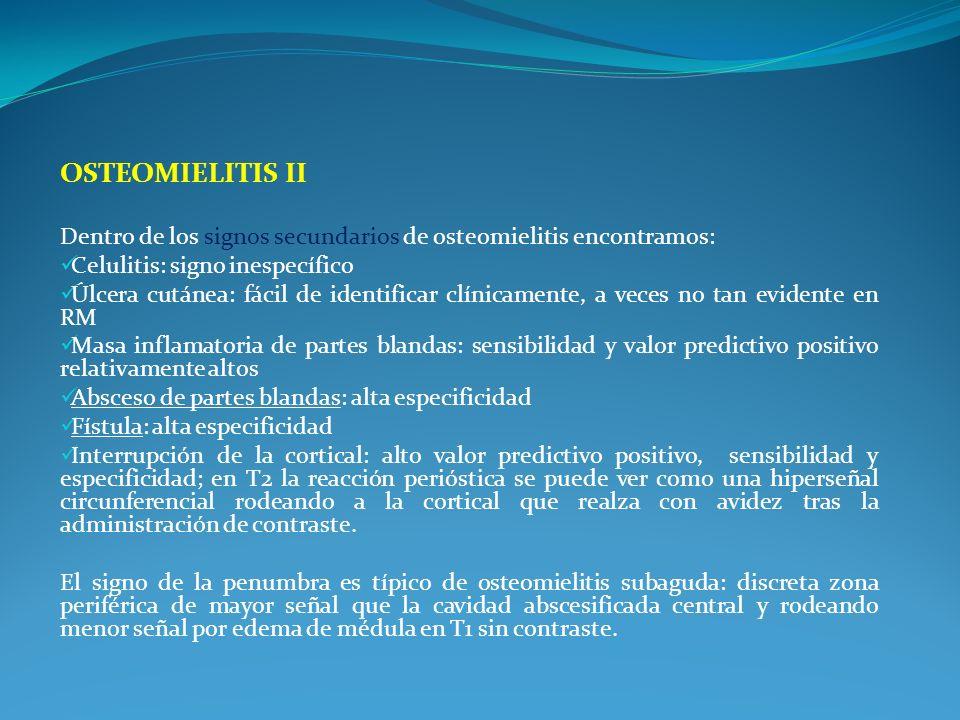 Osteomielitis II Dentro de los signos secundarios de osteomielitis encontramos: Celulitis: signo inespecífico.