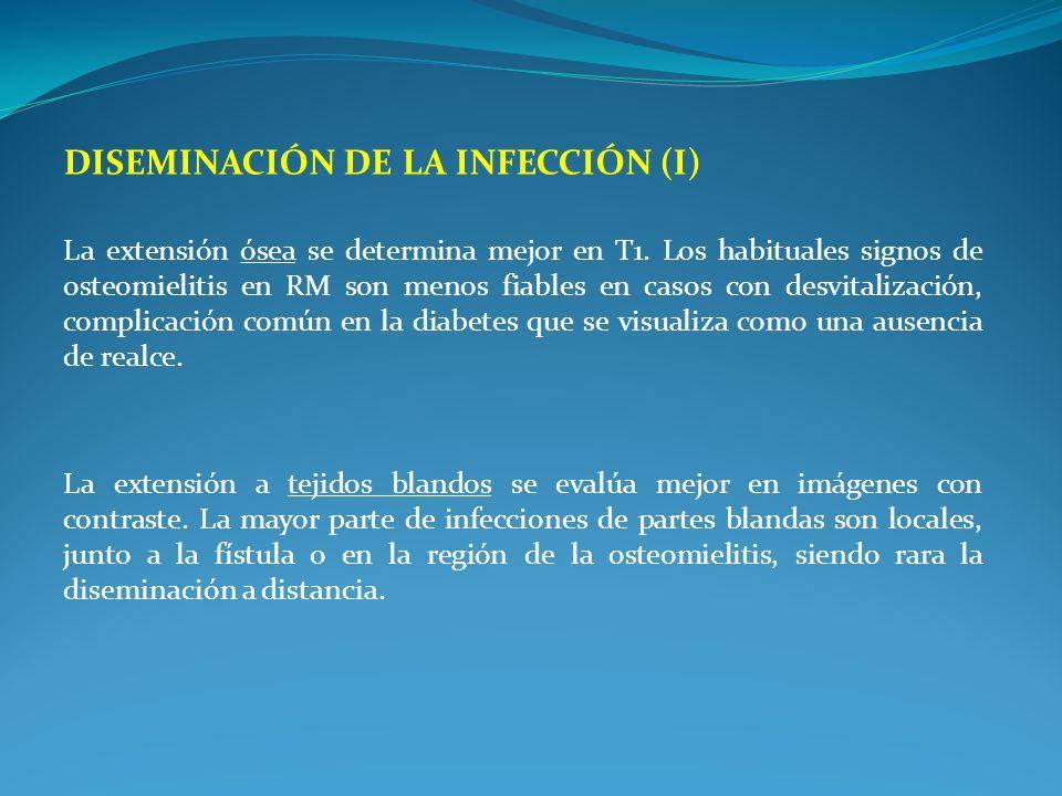 Diseminación de la infección (I)