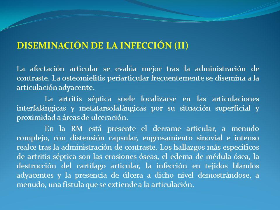 Diseminación de la infección (II)