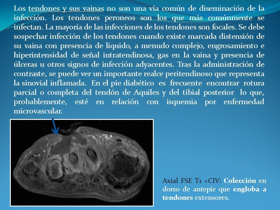 Los tendones y sus vainas no son una vía común de diseminación de la infección. Los tendones peroneos son los que más comúnmente se infectan. La mayoría de las infecciones de los tendones son focales. Se debe sospechar infección de los tendones cuando existe marcada distensión de su vaina con presencia de líquido, a menudo complejo, engrosamiento e hiperintensidad de señal intratendinosa, gas en la vaina y presencia de úlceras u otros signos de infección adyacentes. Tras la administración de contraste, se puede ver un importante realce peritendinoso que representa la sinovial inflamada. En el pie diabético es frecuente encontrar rotura parcial o completa del tendón de Aquiles y del tibial posterior lo que, probablemente, esté en relación con isquemia por enfermedad microvascular.