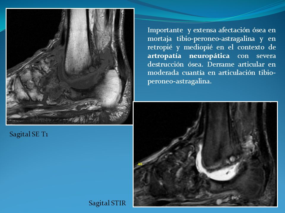 Importante y extensa afectación ósea en mortaja tibio-peroneo-astragalina y en retropié y mediopié en el contexto de artropatía neuropática con severa destrucción ósea. Derrame articular en moderada cuantía en articulación tibio-peroneo-astragalina.