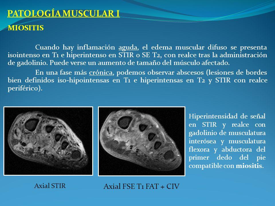 PATOLOGÍA MUSCULAR I Miositis Axial FSE T1 FAT + CIV