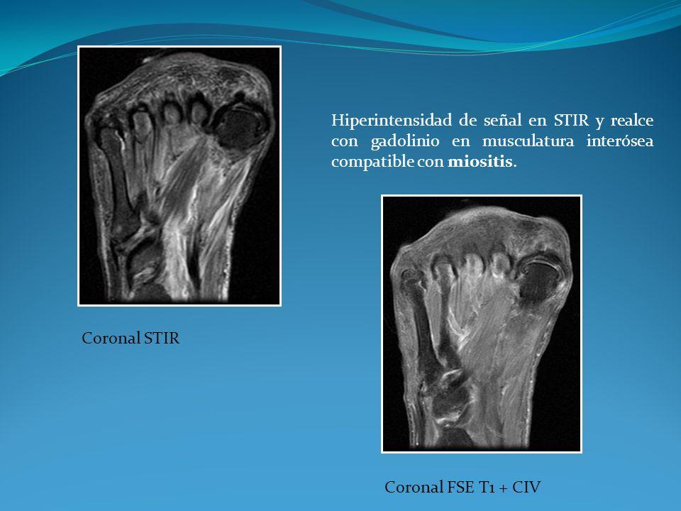 Coronal STIR Coronal FSE T1 + CIV.