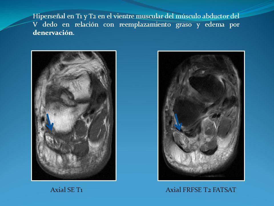 Hiperseñal en T1 y T2 en el vientre muscular del músculo abductor del V dedo en relación con reemplazamiento graso y edema por denervación.