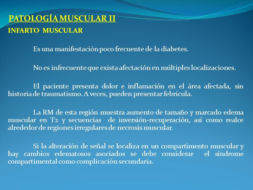 PATOLOGÍA MUSCULAR II Infarto muscular