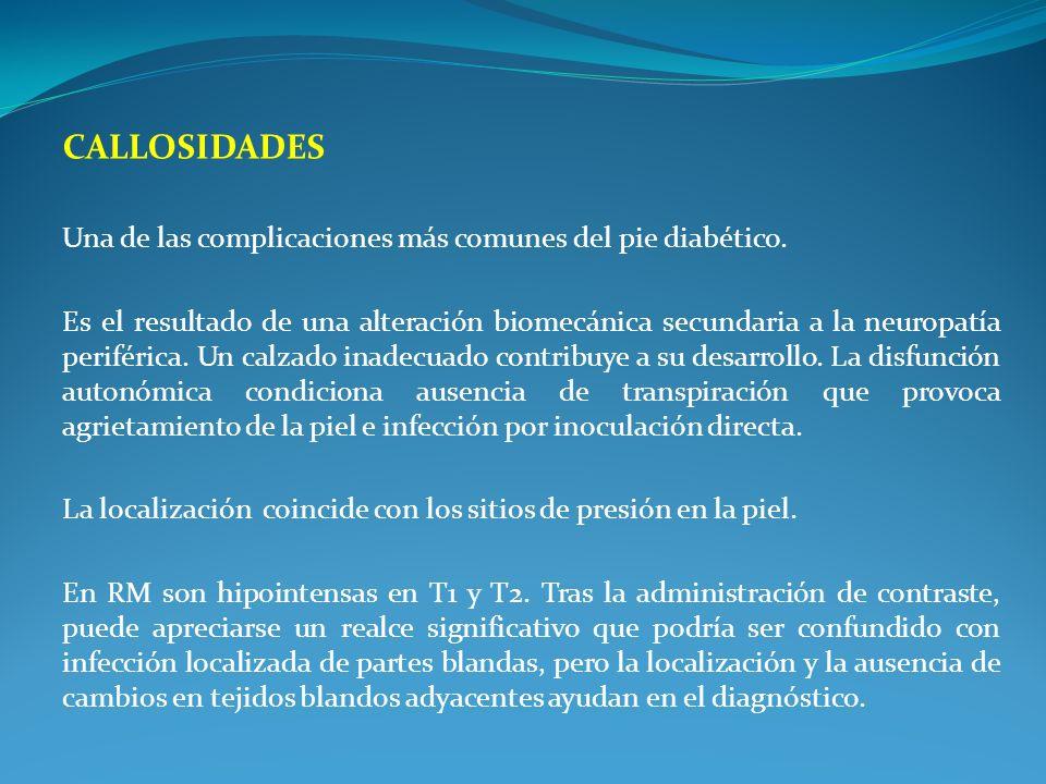 CALLOSIDADES Una de las complicaciones más comunes del pie diabético.