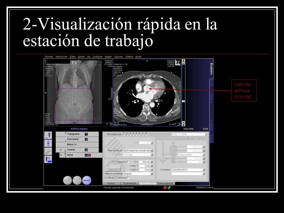 2-Visualización rápida en la estación de trabajo