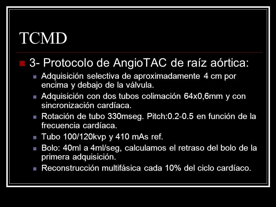 TCMD 3- Protocolo de AngioTAC de raíz aórtica: