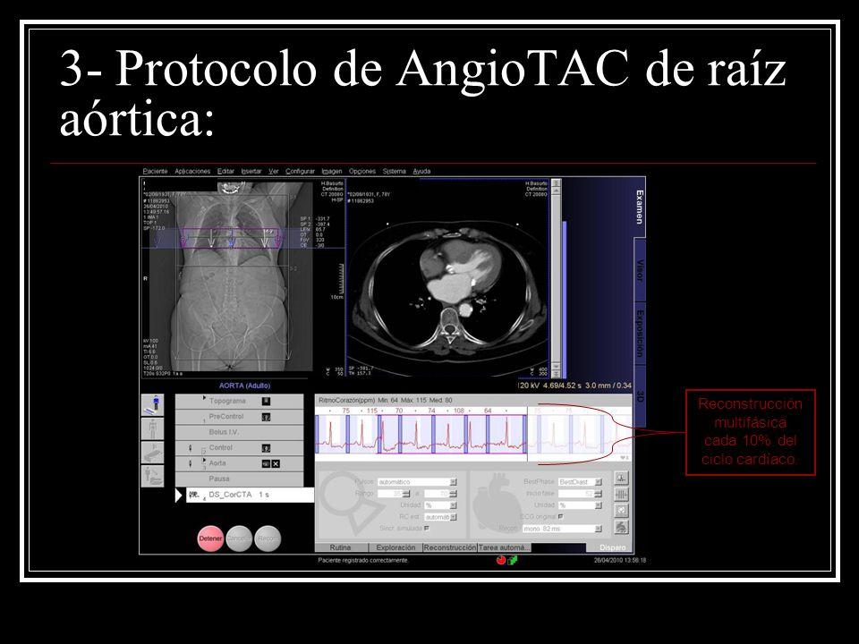 3- Protocolo de AngioTAC de raíz aórtica: