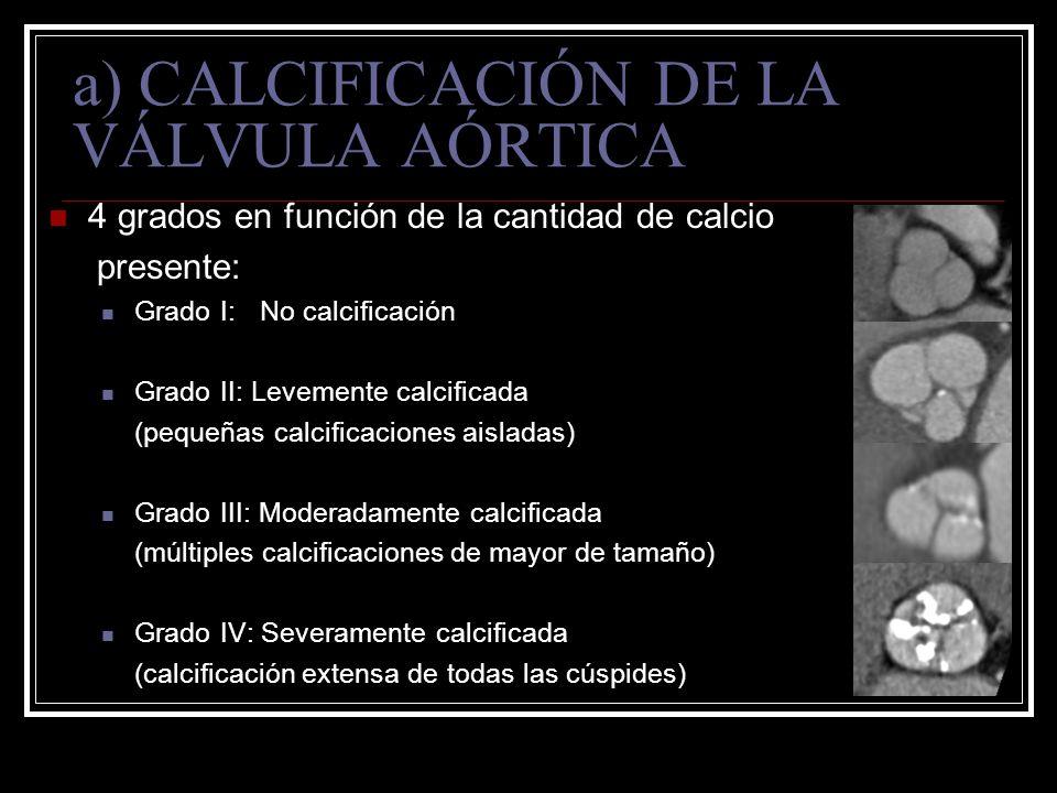 a) CALCIFICACIÓN DE LA VÁLVULA AÓRTICA