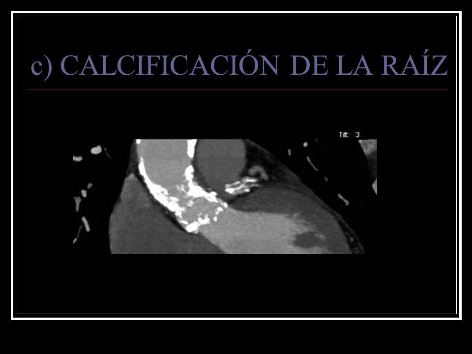 c) CALCIFICACIÓN DE LA RAÍZ