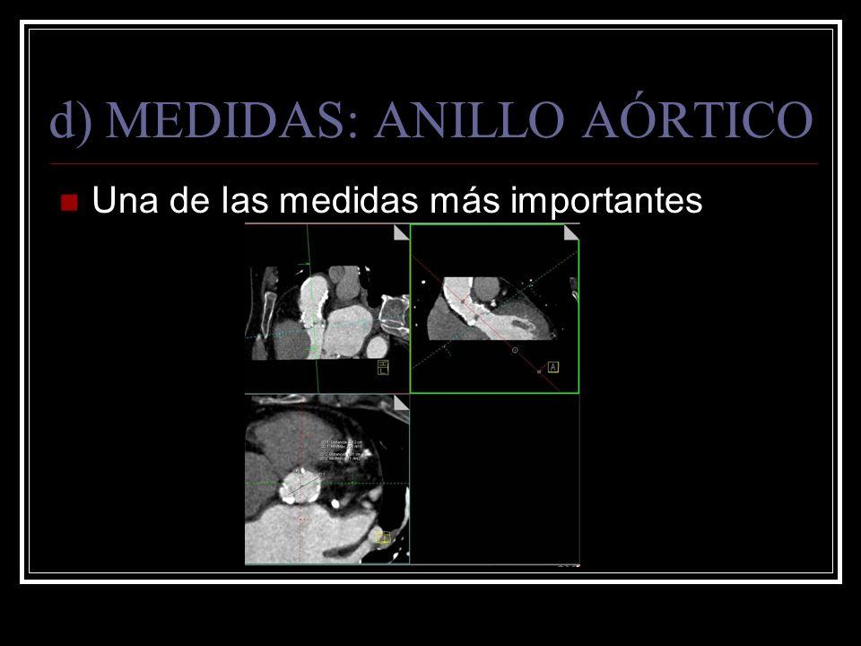 d) MEDIDAS: ANILLO AÓRTICO