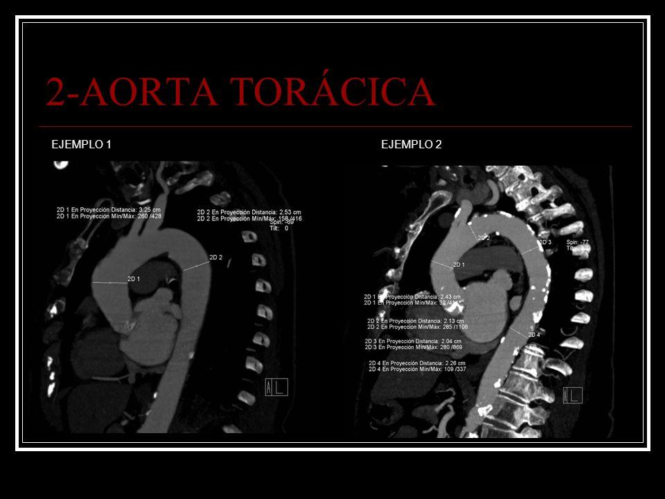 2-AORTA TORÁCICA EJEMPLO 1 EJEMPLO 2