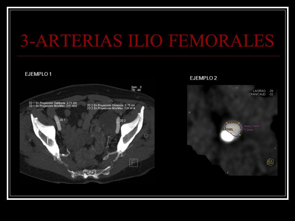 3-ARTERIAS ILIO FEMORALES