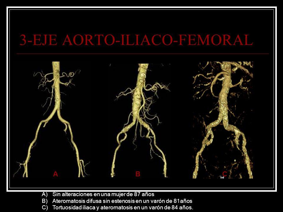 3-EJE AORTO-ILIACO-FEMORAL