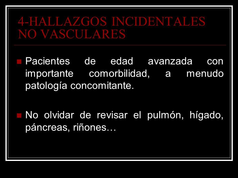 4-HALLAZGOS INCIDENTALES NO VASCULARES
