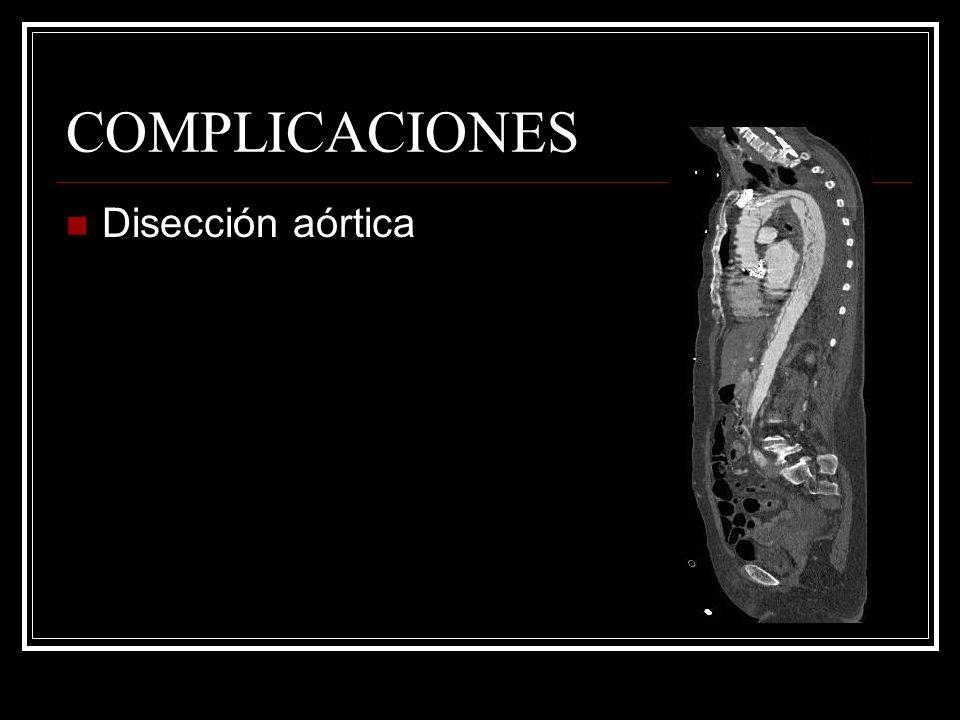 COMPLICACIONES Disección aórtica