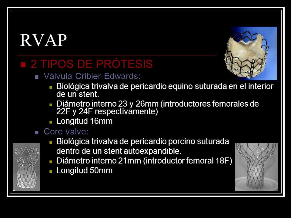 RVAP 2 TIPOS DE PRÓTESIS Válvula Cribier-Edwards: Core valve: