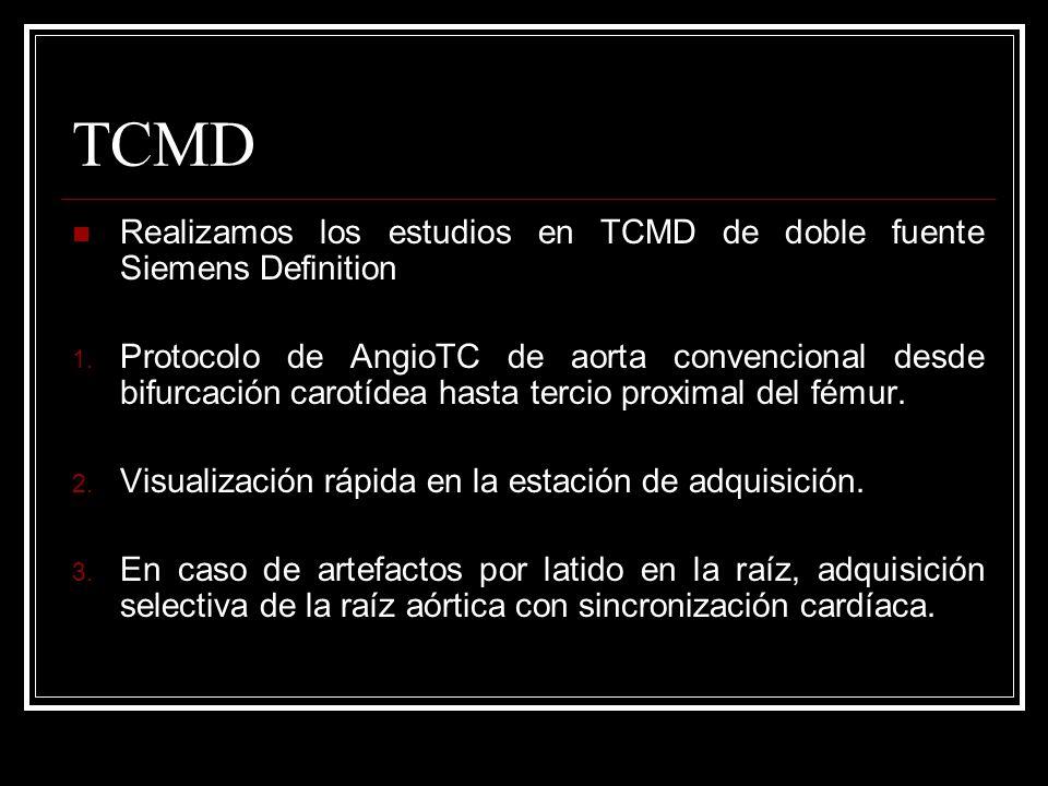 TCMDRealizamos los estudios en TCMD de doble fuente Siemens Definition.