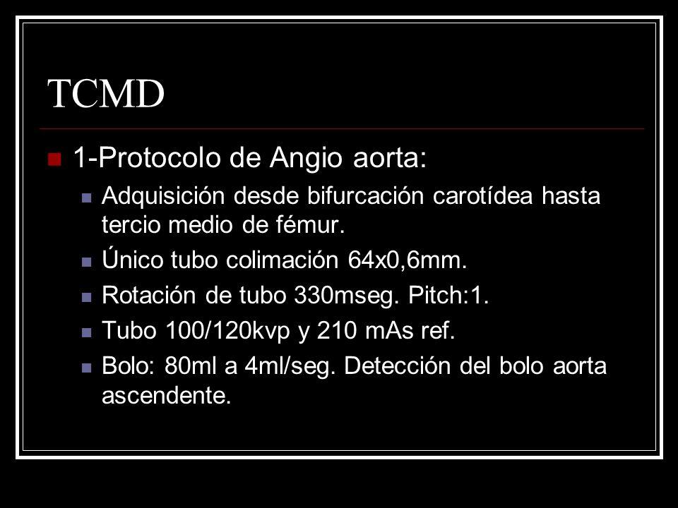 TCMD 1-Protocolo de Angio aorta: