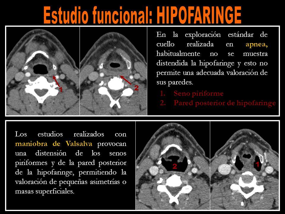 Estudio funcional: HIPOFARINGE