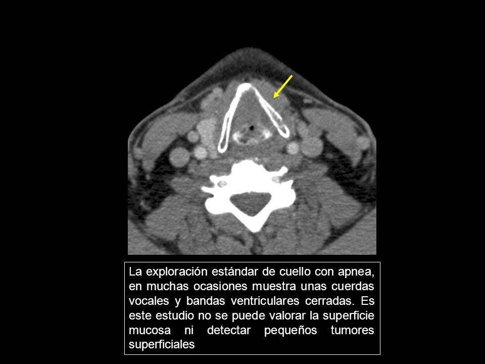 La exploración estándar de cuello con apnea, en muchas ocasiones muestra unas cuerdas vocales y bandas ventriculares cerradas. Es este estudio no se puede valorar la superficie mucosa ni detectar pequeños tumores superficiales