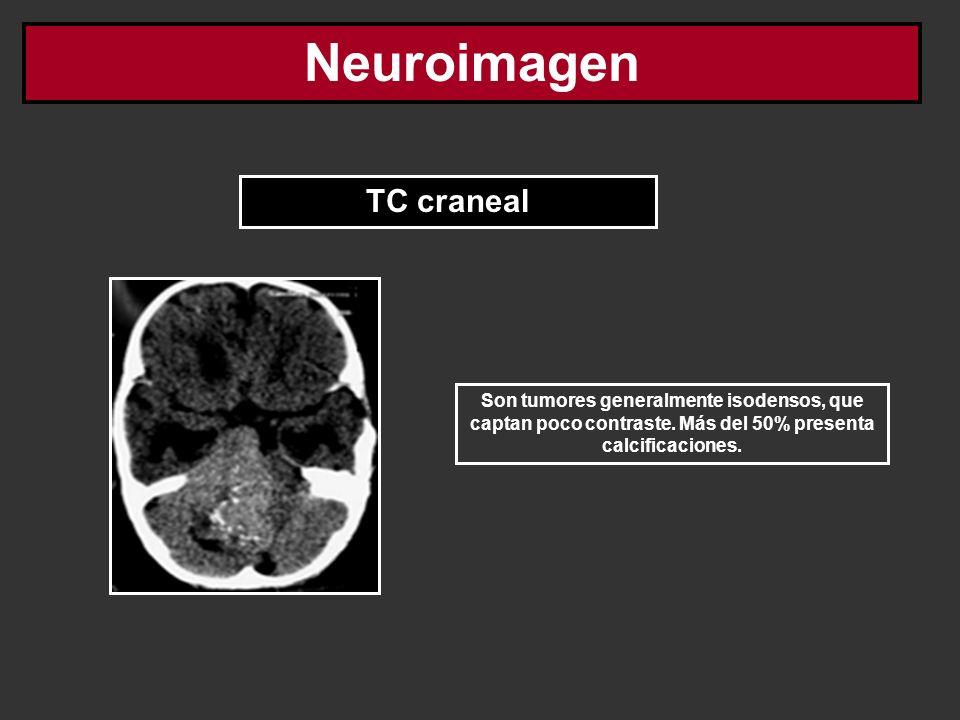 Neuroimagen TC craneal
