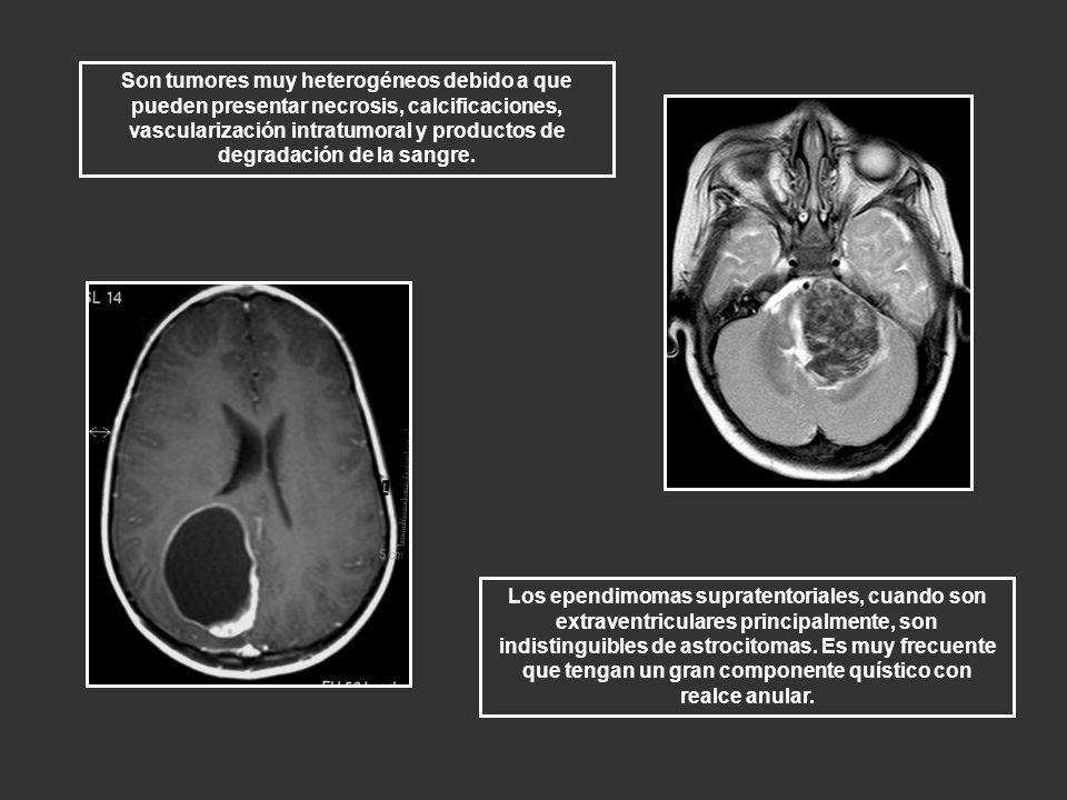 Son tumores muy heterogéneos debido a que pueden presentar necrosis, calcificaciones, vascularización intratumoral y productos de degradación de la sangre.
