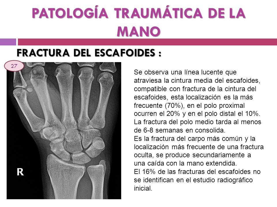 PATOLOGÍA TRAUMÁTICA DE LA MANO