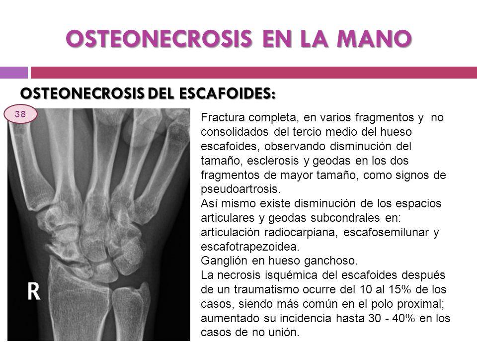 OSTEONECROSIS EN LA MANO