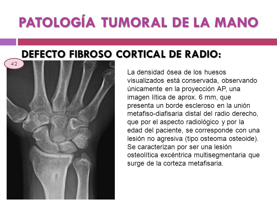 PATOLOGÍA TUMORAL DE LA MANO