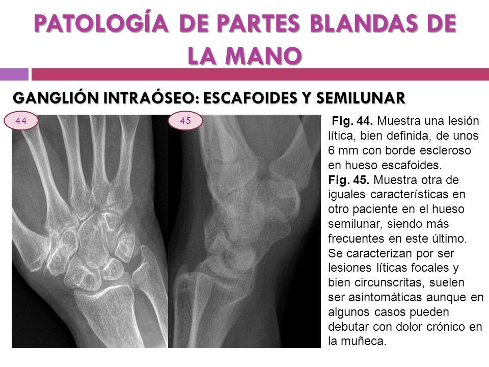 PATOLOGÍA DE PARTES BLANDAS DE LA MANO
