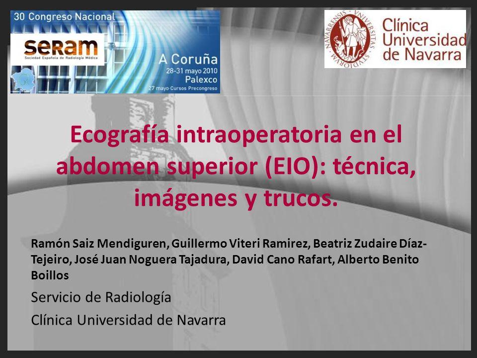 Ecografía intraoperatoria en el abdomen superior (EIO): técnica, imágenes y trucos.