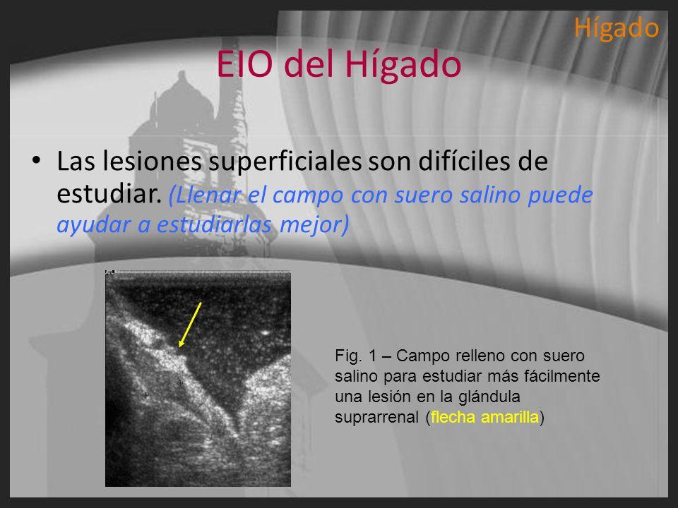 Hígado EIO del Hígado. Las lesiones superficiales son difíciles de estudiar. (Llenar el campo con suero salino puede ayudar a estudiarlas mejor)