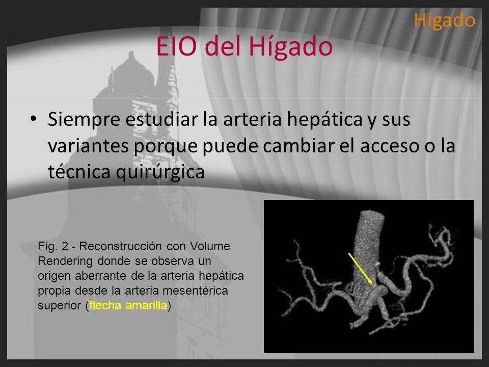 HígadoEIO del Hígado. Siempre estudiar la arteria hepática y sus variantes porque puede cambiar el acceso o la técnica quirúrgica.