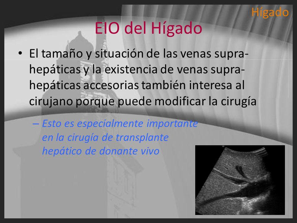Hígado EIO del Hígado.