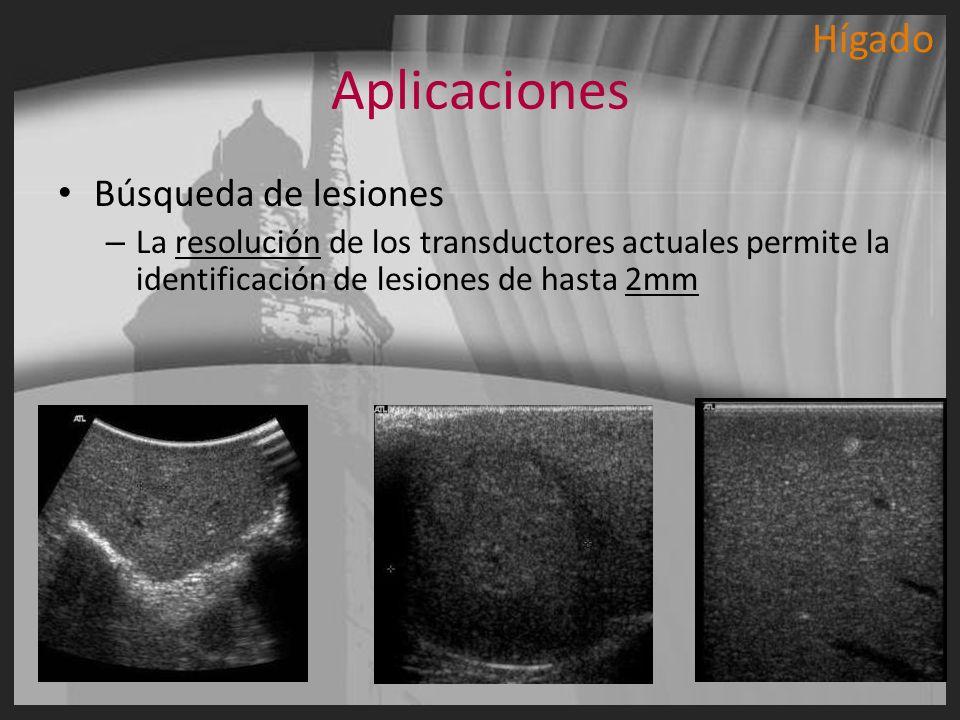 Aplicaciones Hígado Búsqueda de lesiones