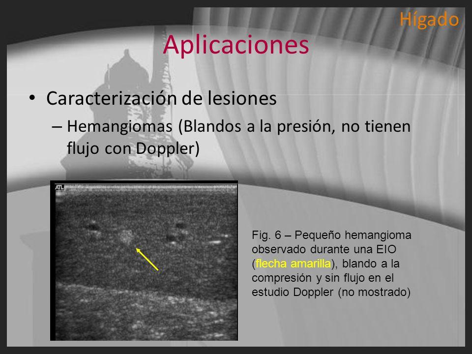 Aplicaciones Hígado Caracterización de lesiones