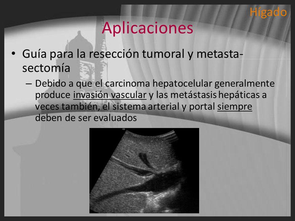 Aplicaciones Hígado Guía para la resección tumoral y metasta-sectomía