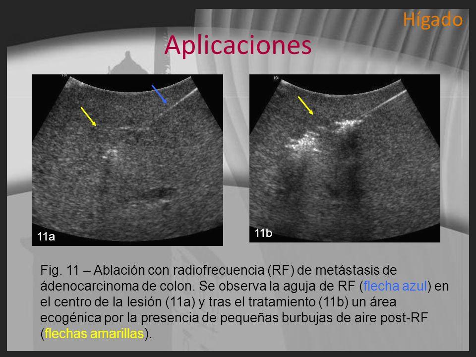 Hígado Aplicaciones. 11a. 11b.