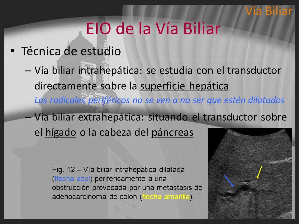 EIO de la Vía Biliar Vía Biliar Técnica de estudio