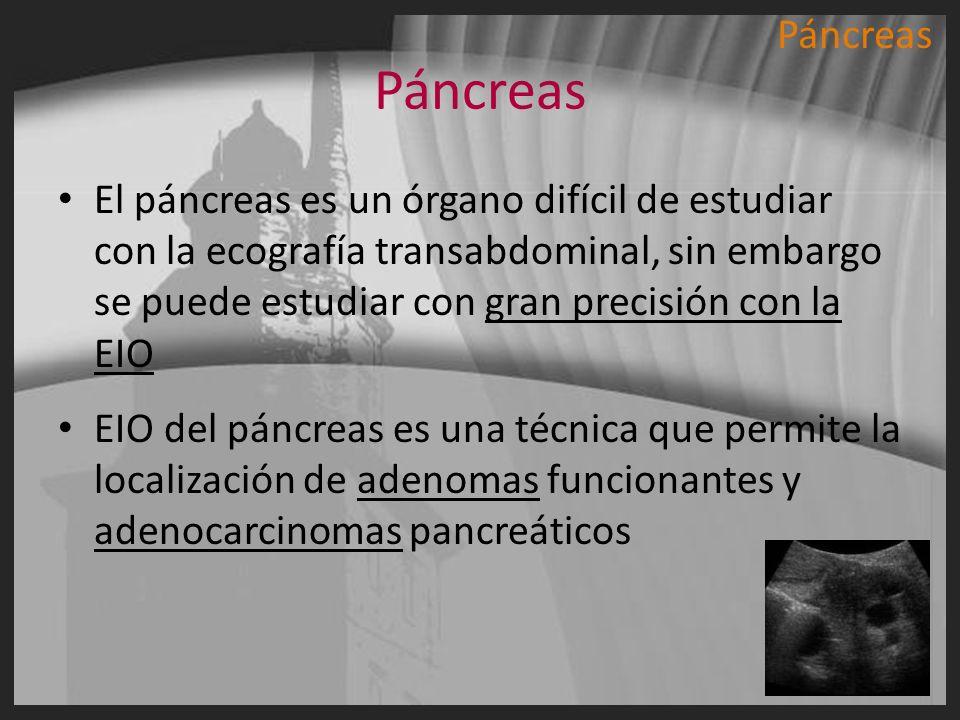 PáncreasPáncreas.