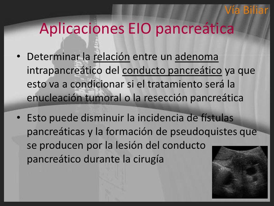 Aplicaciones EIO pancreática