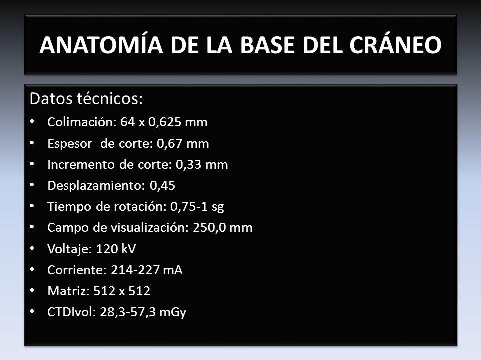 ANATOMÍA DE LA BASE DEL CRÁNEO