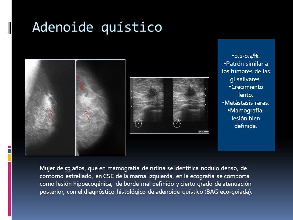 Adenoide quístico 0.1-0.4%. Patrón similar a los tumores de las gl.salivares. Crecimiento lento. Metástasis raras.