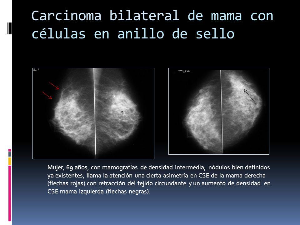 Carcinoma bilateral de mama con células en anillo de sello