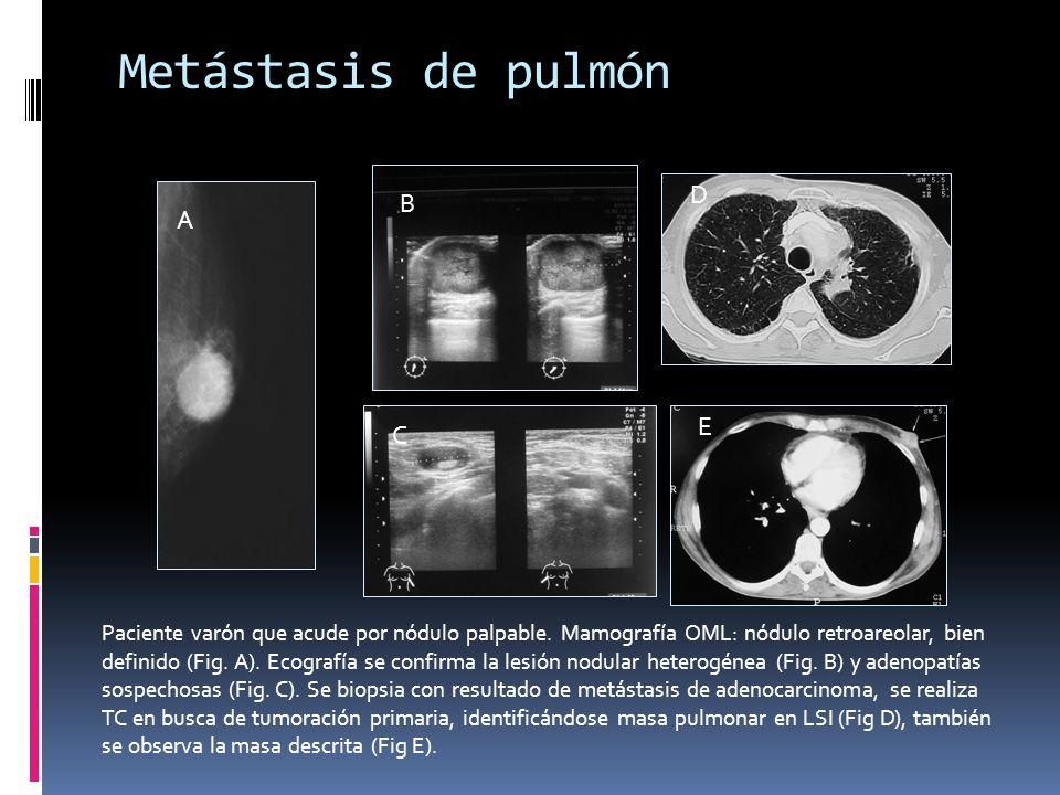 Metástasis de pulmón D B A E C