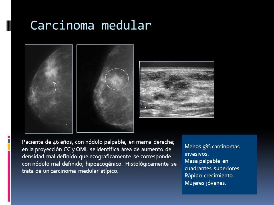 Carcinoma medular Menos 5% carcinomas invasivos. Masa palpable en cuadrantes superiores. Rápido crecimiento.