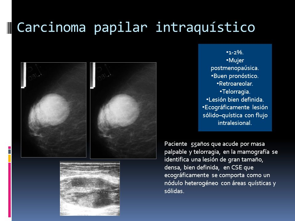 Carcinoma papilar intraquístico