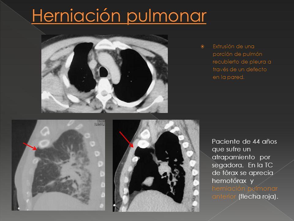 Herniación pulmonar Extrusión de una porción de pulmón recubierto de pleura a través de un defecto en la pared.